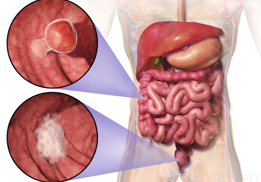 My Planet News - Israeli colon cancer research could double patients
